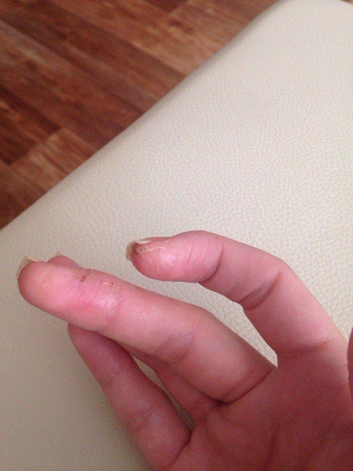Начинающийся грибок на пальцах ног